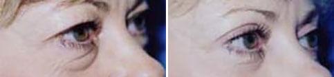 eyelid-2