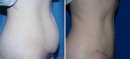procedure-abdomen-2